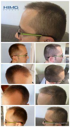 P. Áron - 4000 hajszál beültetése - HIMG Klinika  Áron a fej elülső részén kopaszodott. A tökéletes eredményhez 4000 hajszál beültetésére volt szükség, amit a HIMG Klinika végzett.  http://hajgyogyaszatszeged.hu/