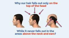 Best Hair loss treatment | How to stop hair loss naturally and baldness ...