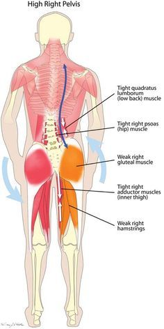 Muscles That Cause the MOST Back Pain (and how to get RELIEF!) High Hip Muscle Imbalance- exactly my problem at every chiropractic appointment!High Hip Muscle Imbalance- exactly my problem at every chiropractic appointment! Fitness Workouts, Muscle Imbalance, Tight Hip Flexors, Muscle Anatomy, Sports Massage, Tight Hips, Hip Muscles, Muscles In The Back, Types Of Muscles