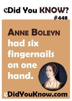 http://edidyouknow.com/did-you-know-449/ Anne Boleyn had six fingernails on one hand.