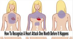7 Early Signs Of Heart Attack You Should Know To Save Your Life