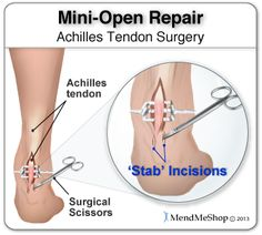 During a mini-open Achilles tendon repair surgery, 2 to 8 small stab incisions are made to pull the edges of the tendon tear together and suture the torn edges to repair the damage. Achilles Tendonitis Treatment, Trapped Nerve, Achilles Pain, Muscular System Anatomy, Tendon Tear, Soft Tissue Injury, Ankle Surgery, Types Of Surgery, Ankle Pain
