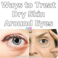 Dry skin is identified by a dull appearance with almost unnoticeable pores, flakiness and sensitive red patches that are quickly irritated. Your skin will feel less flexible and you'll likely have more lines and wrinkles, as an outcome of the dryness. Dry Skin Under Eyes, Eczema Around Eyes, Eye Eczema, Dry Flaky Skin, Oil For Dry Skin, Scaly Skin, Dry Skin Remedies, The Help