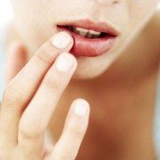 Last van gebarsten lippen?