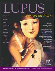 Removing the Masks of Lupus...Someone you know has Lupus