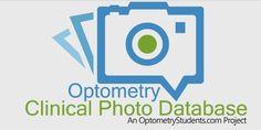 Optometry Clinical Photo Database - Optometry Clinical Photo Database