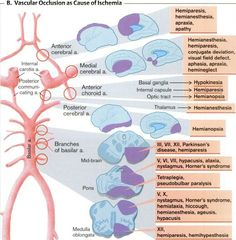 summary of stroke location / lesion / deficits.