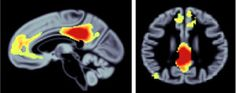 Memory Related Brain Network Shrinks with Aging - Network of brain regions, highlighted in red and yellow, show atrophy in both healthy aging and neurodegenerative disease. The regions highlighted are susceptible to normal aging and dementia. Adapted from the Cornell University press release. #neuroscience NeuroscienceNews.com.