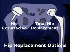 article on total hip replacement vs. resurfacing