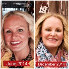 Jessica Rich-Floros used Reverse to get rid of her sun damage.