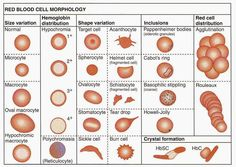 Red Blood Cell Morphology Abnormalities