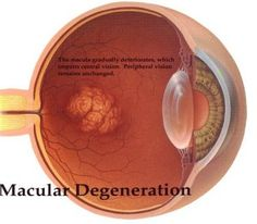 The global age-related macular degeneration market was valued at $5,335.7 million in 2015, and it is expected to grow at a CAGR of 7.6% during 2016 – 2022.For More Detail at- https://www.psmarketresearch.com/market-analysis/age-related-macular-degeneration-market