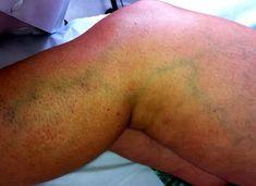 As varizes são veias dilatadas e deformadas que surgem nas pernas e podem causar dor e inchaço.