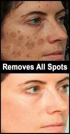 Home Remedies For Dark Spots remedies for dark spots on face. Beauty Care, Beauty Skin, Health And Beauty, Diy Beauty, Homemade Beauty, Beauty Ideas, Bleaching Your Skin, Dark Spots On Face, Beauty Hacks For Teens