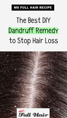 Did you know you can also use olive oil for hair loss and dandruff prevention? Use this olive oil hair mask recipe to stop dandruff related hair loss and regrow hair. The benefits of this dandruff… Oil For Hair Loss, Stop Hair Loss, Prevent Hair Loss, Dandruff Remedy, Hair Remedies For Growth, Hair Loss Remedies, Hair Growth, Growth Oil, Hair Loss Treatment