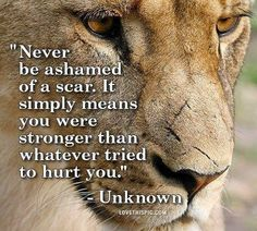 """Never be ashamed of a scar. It simply means that you are stronger than whatever tried to hurt you."""