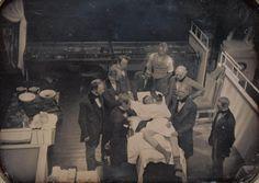 El primer registro fotográfico de una operación médica en vivo, utilizando el éter para anestesia. 1847