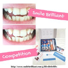 Want brighter, whiter teeth? Here is my before and after picture along with wha. Teeth Whitening System, Before And After Pictures, White Teeth, Next Week, Competition, Bright, Link, Posts, Smile