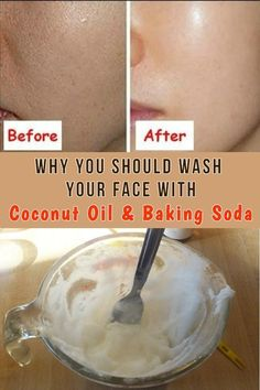 Coconut oil is one of the most useful natural oils you can use and baking soda is a great facial scrub a winning combination! beauty beautitricks beautyskin surprising uses for baking soda Baking Soda Coconut Oil, Baking Soda Baking Powder, Baking Soda For Hair, Baking Soda Water, Baking Soda Vinegar, Baking Soda Shampoo, Baking Soda Uses, Face Mask Baking Soda, Baking Soda For Health