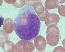 metamyelocyte