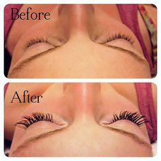 Eyelash Extensions: Before  After!  Come To Skinthetics Laser Hair Removal  Skin Care Center in West Bloomfield, MI for all of your personal pampering needs!  Call (248) 855-6668 to schedule an appointment or to find out more information!