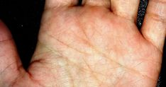 Image Of Fish Symbol End Of Life Line In Palmistry Indian Palmistry, Image Of Fish, Face Reading, Dream Interpretation, Secrets Revealed, End Of Life, Palms, Witch, Medicine