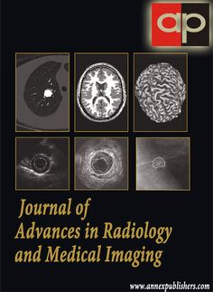 Journal of Advances in Radiology and Medical Imaging (JARMI) is a peer-reviewed, open access journal which provides an advanced research on Radiology and Medical Imaging, focusing on Advances in Therapeutic Radiology, Diagnostic Radiology, Biomedical imaging analysis and Novel image processing systems, etc.