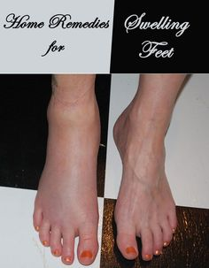 Home Remedies for Swelling Feet