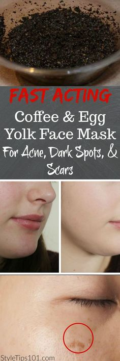 Homemade Acne Mask - How to Fade Dark Marks and Blemishes With a Honey and Turmeric Face Mask >>> Learn more by visiting the image link. #acne