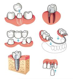 """Happy Family Day, everyone!! What a great summary of restorative dental procedures! Top left: crown - original tooth is prepped, for example, in the case of a large cavity, and a """"cap"""" is placed to protect it from damage Top right: post + core crown, likely after a root canal (I'm assuming that's what the shaded roots mean!). When you get a root canal, the nerve(s) are gone, which means that the foundation is weakened. Putting a post before crowning a tooth will add support to prolong the"""