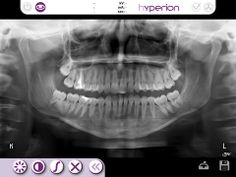 Zdjęcie Pantomograficzne wykonywane jest u nas od ręki i stanowi podstawę diagnozy i przewidywanego leczenia.