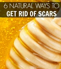 natural ways to get rid of scars