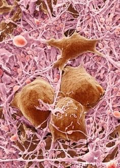 ✯ Nerve cells and glial cells, coloured scanning electron micrograph (SEM). The nerve cells have small cell bodies (pink) and fine extensions called axons and dendrites (mauve). The glial cells have large cell bodies (brown) with thicker extensions (mauve). Neurons are responsible for passing information around the central nervous system (CNS) and from the CNS to the rest of the body. Glial cells are nervous system cells that provide the neurons with structural support and protection.✯
