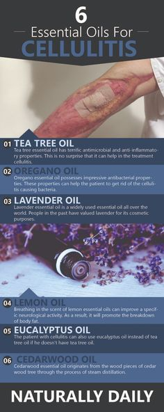 6 Best Essential Oils for Cellulitis Natural Remedies Essential Oils for Cellulitis Natural Remedies Helichrysum Essential Oil, Oregano Essential Oil, Essential Oils For Pain, Tea Tree Essential Oil, Essential Oil Uses, Doterra Essential Oils, Young Living Essential Oils, Natural Remedies, Loosing Weight