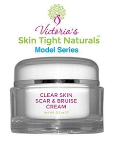 Victoria's Best Clear Skin Scar and Bruise Cream Model Series - Skin Tight Naturals
