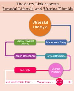 The scary link between stressful lifestyle and uterine fibroids #drgarimatyagi