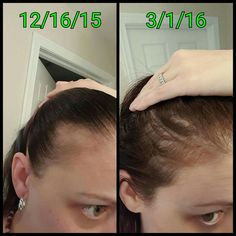 A team member! On December 18,2015 she was diagnosed with lichen Planopilaris, an autoimmune disease that attacks the hair follicle, essentially killing it and causing hair loss that is usually permanent. She started taking Hair Skin Nails in hopes that it may help a little... Not only did it make her hair longer, shes starting to see growth and fullness at her hairline again! . .contact me for more info on HSN! ASAP  #healthyhair #lichenplanopilaris EMAIL me at…