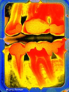 Teeth X-ray art. Father's day gift?