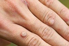 Στο σημερινό μας άρθρο θα μάθετε ποιοι είναι οι τύποι κονδυλωμάτων, αλλά και τρόπους αντιμετώπισης.Τα κονδυλώματα είναι ένα πολύ συχνό πρόβλημα. Pharmacology, Wedding Rings, Engagement Rings, Natural, Layers Of Skin, Remove Warts, Dead Skin, Dry Skin