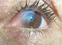 EL BREVE ESPACIO: Aloe Vera y Manzanilla para eliminar las carnosidades de los ojos
