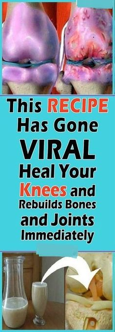 Joint Pain Remedies This Remedy Has Gone Viral! Heal your Knees and Rebuilds Bones and Joints Instantly Rheumatoid Arthritis Diet, Arthritis Remedies, Health Remedies, Arthritis Hands, Knee Arthritis, Arthritis Society, Natural Cure For Arthritis, Natural Remedies, Home Remedies