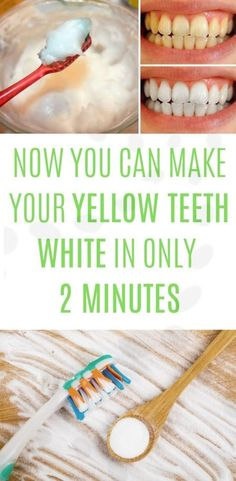 There are many whitening gels you can buy, but most of them are ineffective. Now there is an effective way to naturally whiten your teeth. All you need is 2 minutes of your life and 2 ingredients: All You Need Is, Teeth Whiting At Home, Causes Of Tooth Decay, Get Whiter Teeth, Teeth Whitening Diy, Teeth Bleaching, Teeth Care, White Teeth, Oral Hygiene