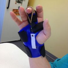 dynamic pip flexion splint - Google Search #DynamicStretching Trigger Finger Exercises, Finger Flexion, Hand Surgery, Plastic And Reconstructive Surgery, Dynamic Stretching, Therapy Tools, Therapy Ideas, Adaptive Equipment, Psoas Muscle