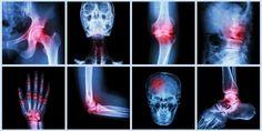 Arthrose und Rheuma - Der unsichtbare Feind in den Gelenken
