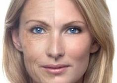 Why use natural wrinkle remedies for getting rid of wrinkles? home remedies, beauty tips, skin care, natural treatments, essential oils, beauti, health, homes, cream