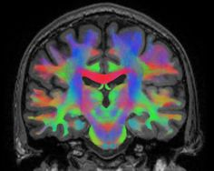 Space-brain networking by europeanspaceagency on Flickr.A través de Flickr: An advanced MRI scan of a human brain showing neural networks. Humans are adaptable beings. Wear glasses continuously that turn your view of the world upside-down and inside two weeks your brain will have adapted – everything will seem normal again. Researchers suspect that astronauts' brains adapt to living in weightlessness by using previously untapped links between neurons. As the astronauts learn to float around…
