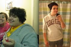 Before and After Weight Loss Photo