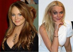 Stardom effects everyone differently. Lindsay Lohan was a beautiful young woman before becoming obsessed with Botox and plastic surgery. Lip injections and facial fillers are added to her list as well. Botox Before And After, Celebrities Before And After, Celebrities Then And Now, Worst Celebrities, Christina Ricci, Jackie Stallone, Amy Winehouse, Charlie Sheen, Bad Plastic Surgeries