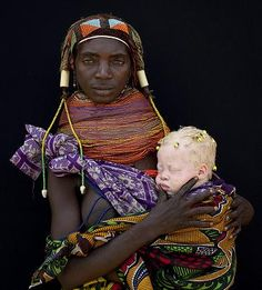 What Did Adam And Eve Look Like? Mother and albino bambino.