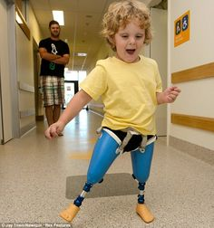 Up and about: Three-year-old Ted Johnson tries out his new prosthetic legs with feet